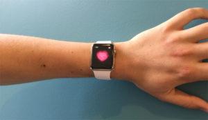 Apple se cura en salud comprando la startup de datos médicos Gliimpse