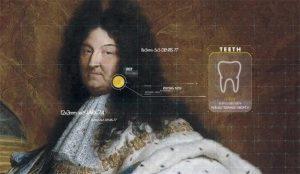 Canal+ recrea en esta campaña la voz de Luis XIV desempolvando archivos médicos del