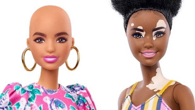 barbie calva y vitiligo